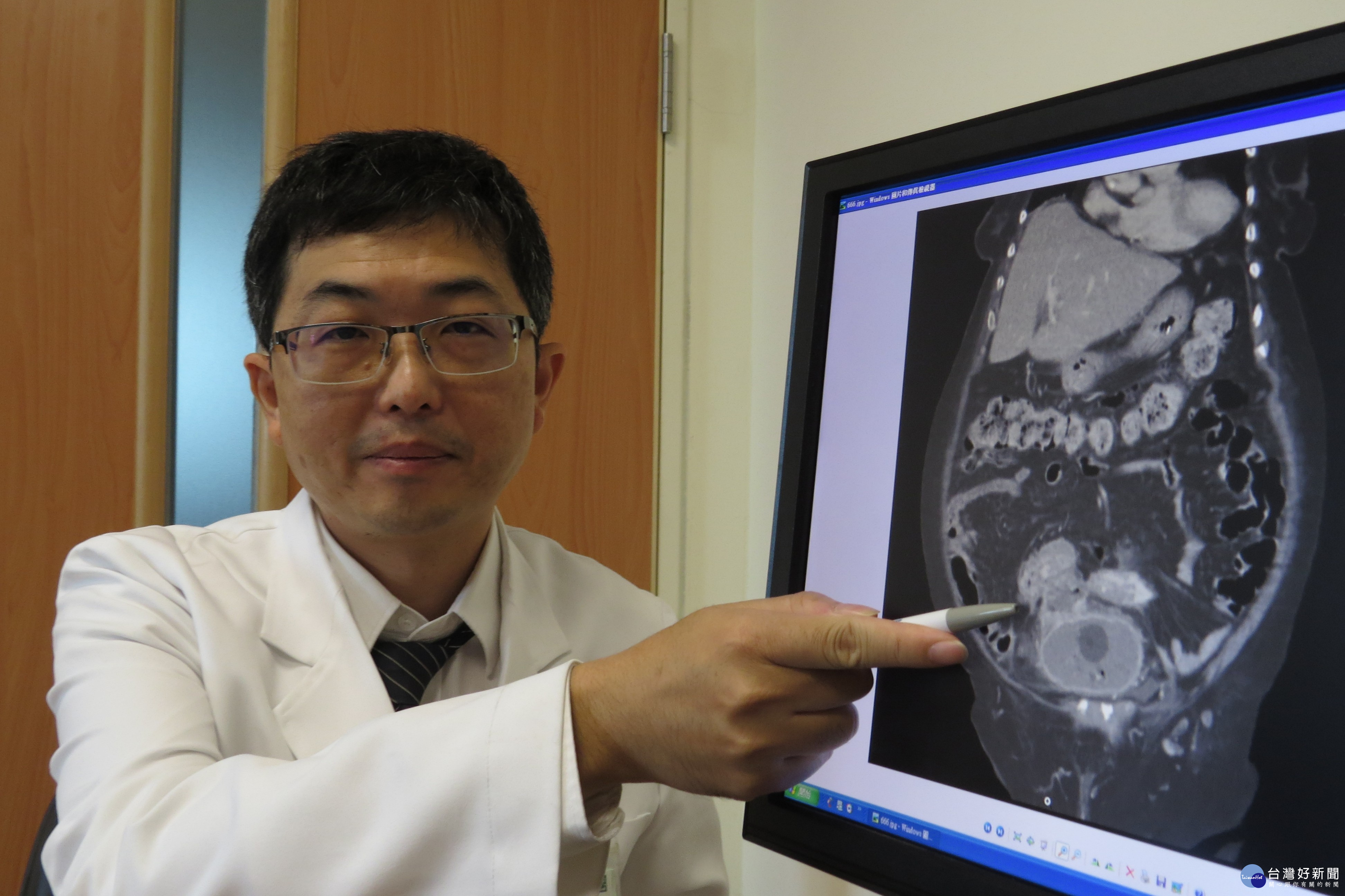 九旬婦人泌尿道反覆感染 竟是大腸膀胱瘻管作祟