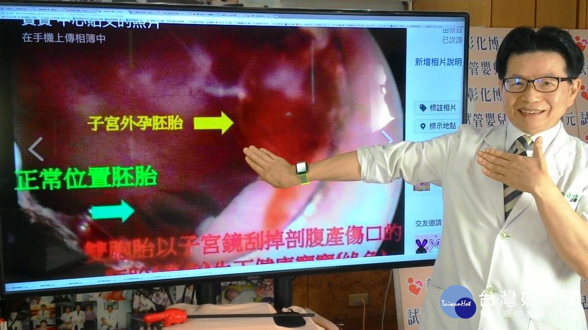 子宮鏡兩面刃 醫師技術純熟就是救命武器