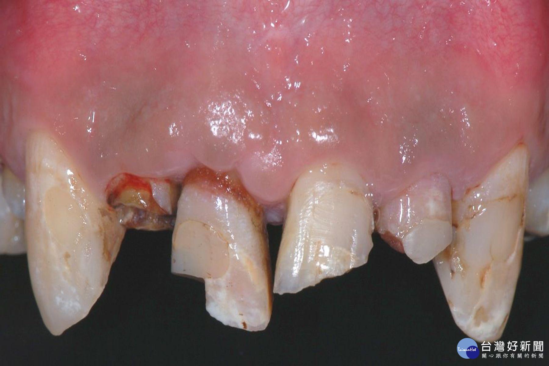 牙齒撞傷需冷靜 找回斷牙保持潮濕盡快就醫