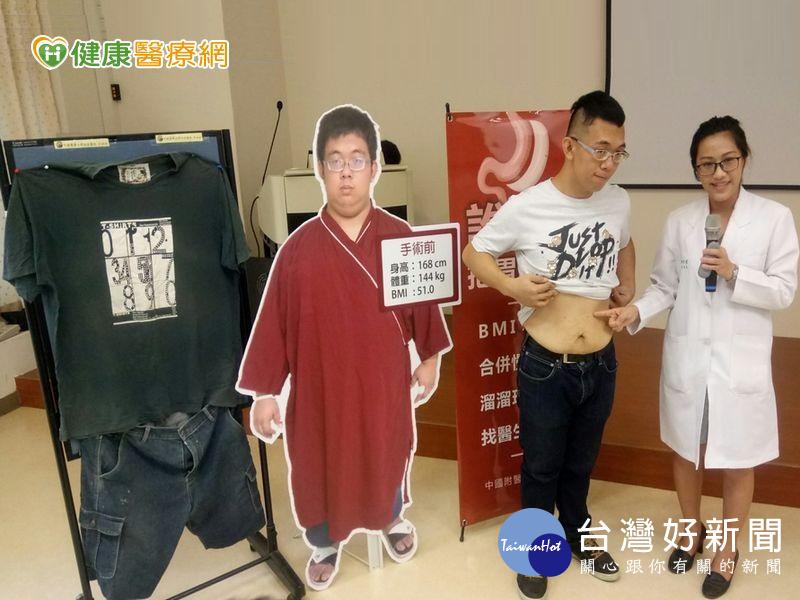男子體重破143公斤 胃縮手術順利減重