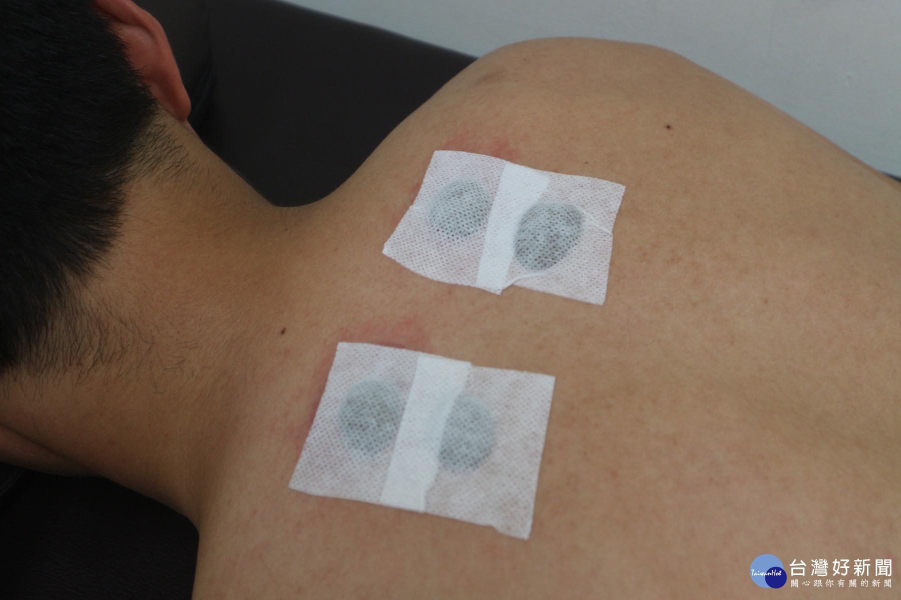 冬病夏治 三伏貼中醫外治法輔助將治過敏性鼻炎