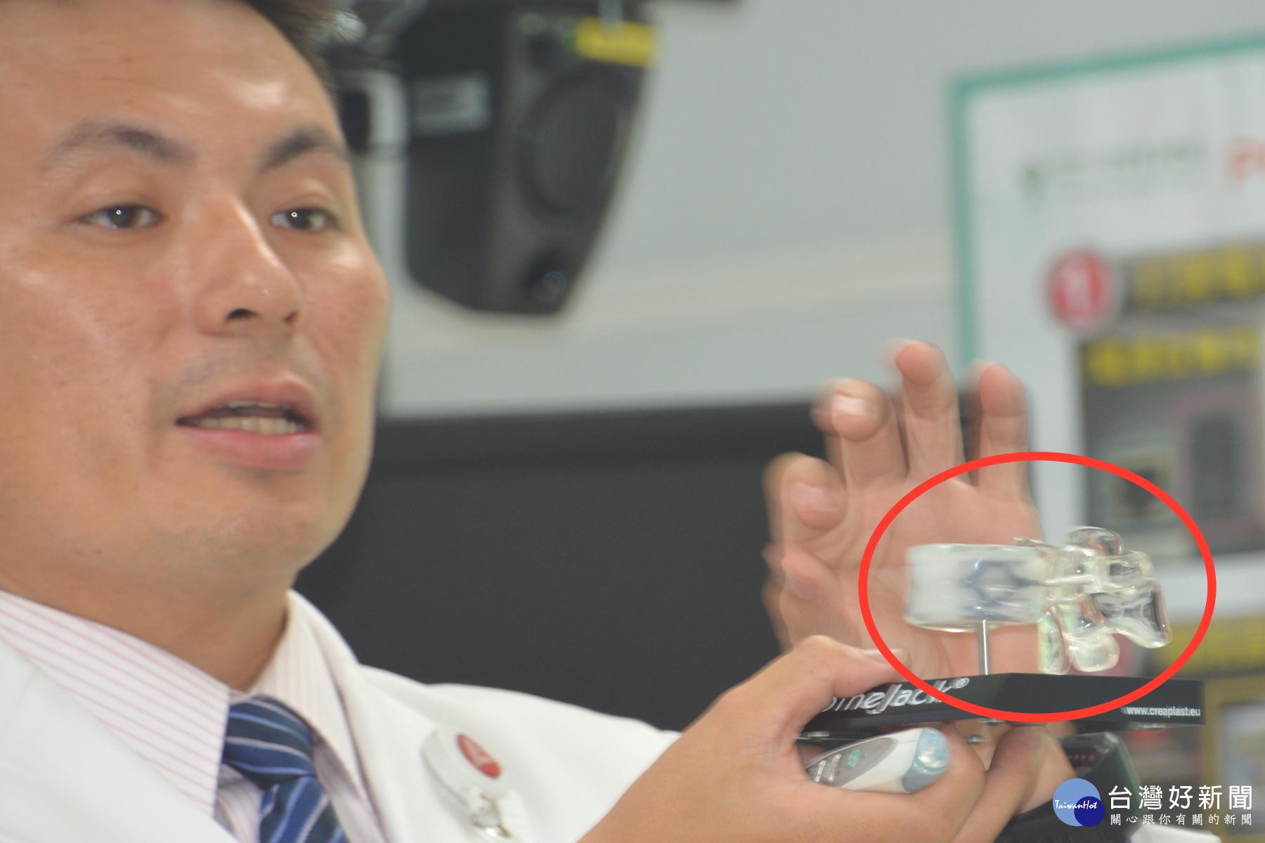 脊椎「千斤頂」支架極顯微手術 讓瀕癱瘓前蛙人免終身躺病床