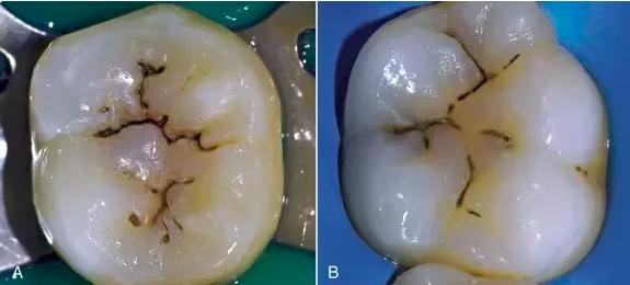 后牙槽上有着謎之黑線,是我沒刷乾淨嗎?