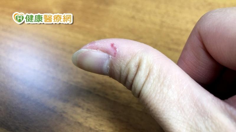 指甲旁邊倒刺 居然跟新冠疫情有關?