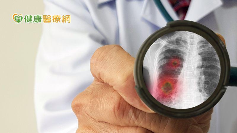 流感併發金黃色葡萄球菌肺炎,後果更嚴重…