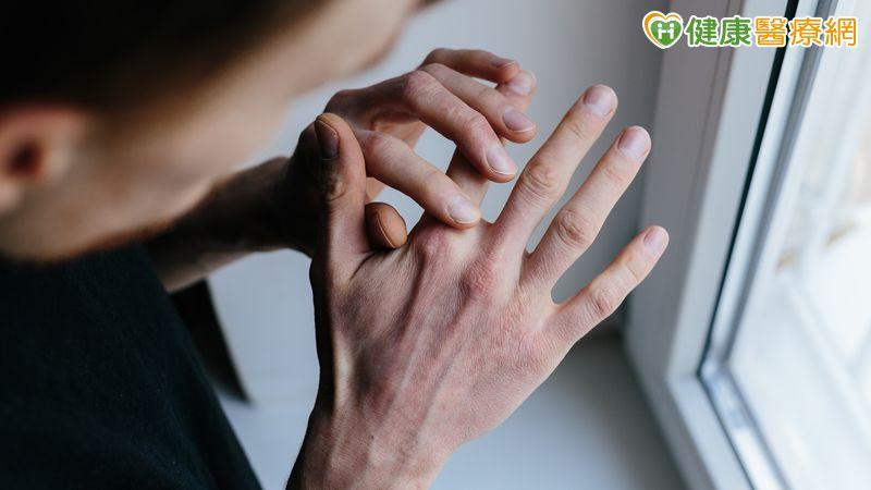 冬天富貴手痛又癢 中醫用喝的也能解決