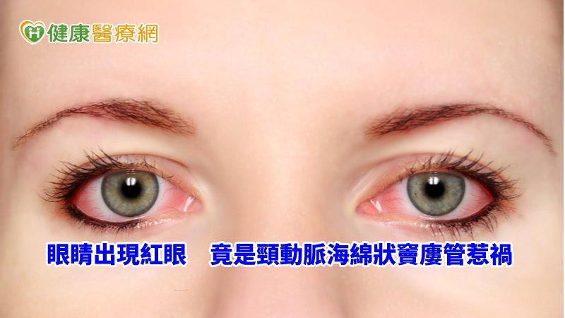 75歲女紅眼難消 原來是腦血管疾病導致_益生菌