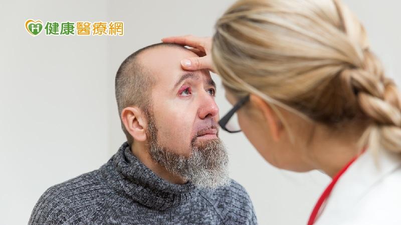 長針眼會傳染嗎? 不會!醫破除3迷思
