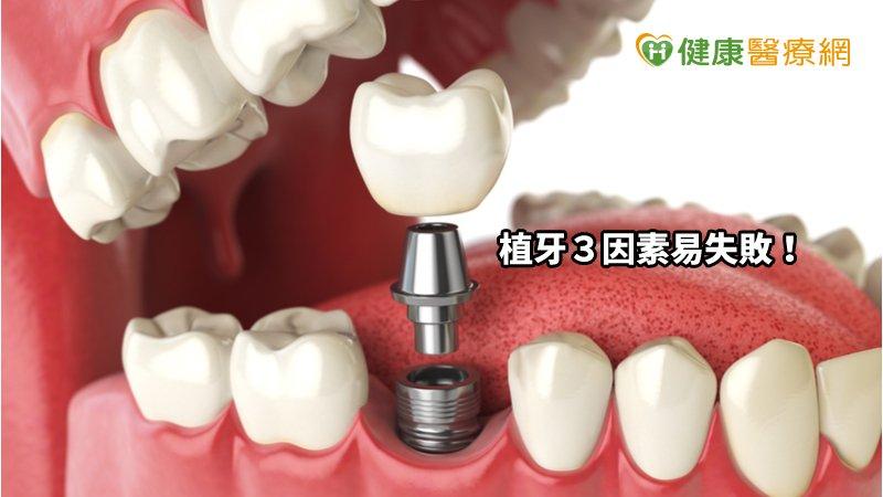 植牙3因素易失敗! 數位牙導航系統安全再升級_減肥天龍國