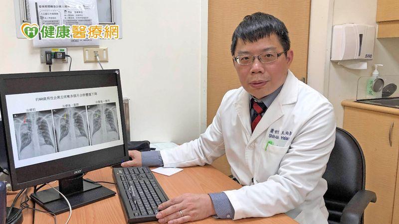肺癌新一代ALK標靶納健保 無惡化存活期1年增至近3年_頭型